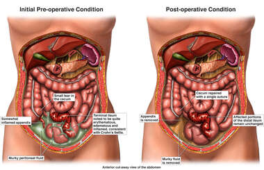 Appendicitis and Crohn's Ileitis with Surgical Appendectomy