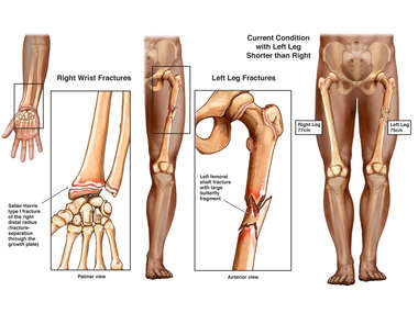 Post-accident Injuries to the Right Wrist and Left Leg