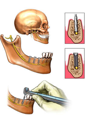 Inferior Alveolar Nerve Injury From Dental Drill / Implant