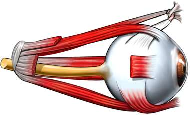 Eyeball with Musculature, Lateral View