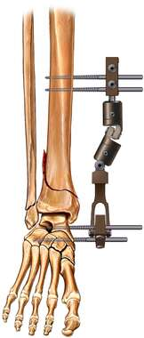 Tibial Fracture Fixation