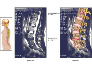 T12-L1 and L4-5 Disc Herniations