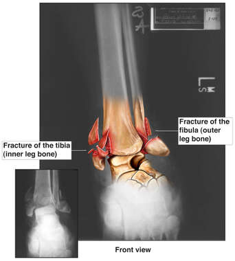 Left Ankle X-ray