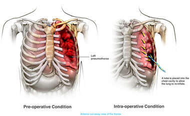 Pneumothorax with Placement of a Chest Tube to Re-inflate the Lung