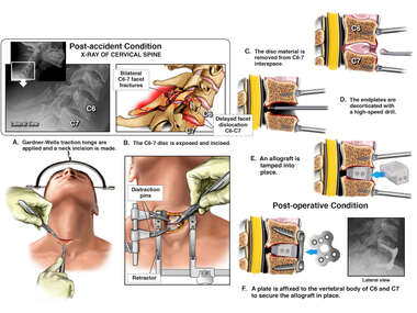 Cervical Spine Injuries with Surgical Repairs