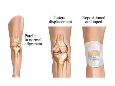 Correction of Patellar Alignment