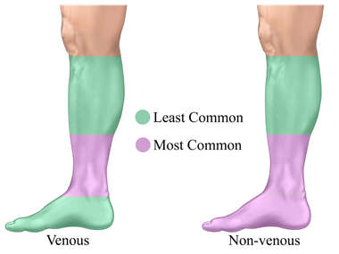 Skin Ulcers: Non-venous vs. Venous