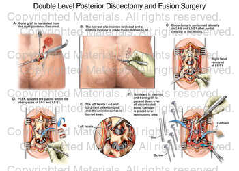 Double Level Posterior Discectomy and Fusion Surgery