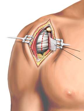 Open Surgical Procedure: Shoulder Stabilization