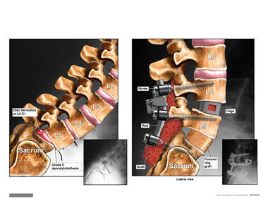 Lumbar Spine Injuries with Double Level Anterior Discectomy