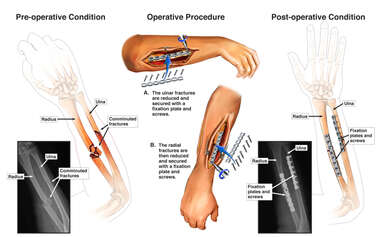 Right Forearm Fractures with Surgical Fixation
