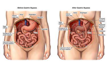 Condition Before and After Gastric Bypass (Retroperitoneal)