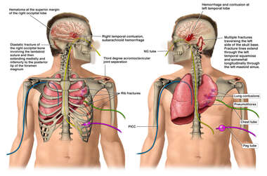 Side by Side Male Figues Revealing Surgical Tubes, Catheters, Collapsed Lung, and Bilateral Brain Injuries
