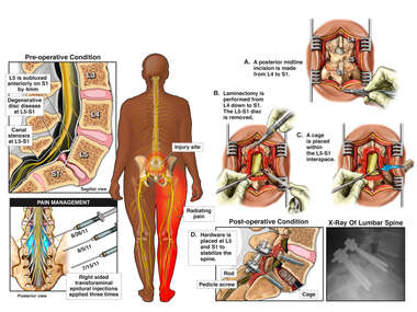 Lumbar Spine Injury with Epidural Steroid Injections and Eventual Surgical Decompression and Fusion