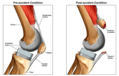 Traumatic Patellar Injury Following Knee Replacement Surgery