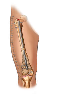 Osteotomy and Lengthening of Femur