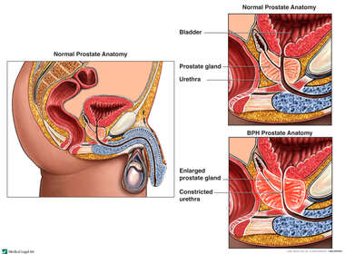 Prostate Enlargement: Benign Prostatic Hyperplasia versus Normal Prostate Anatomy