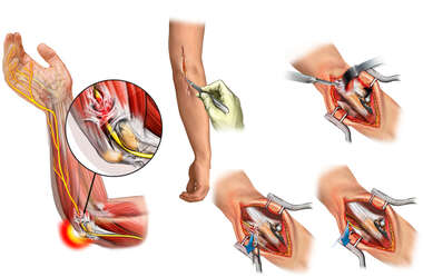 Elbow Contractures with Surgical Repairs