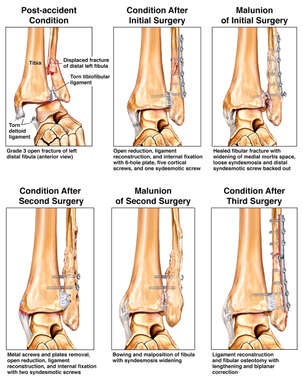 Left Fibula Fracture and Surgical Fixation