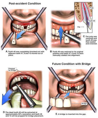 Progression of Severe Tooth Injury