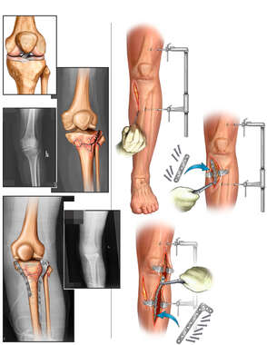 Left Tibial Plateau Fracture with Surgical Fixation
