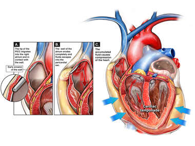 PICC Line Placement with Erosion of the atrial Wall and Resulting Cardiac Tamponade