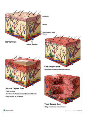 Severity of Burns