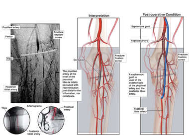 Occlusion of Popliteal Artery in the Knee