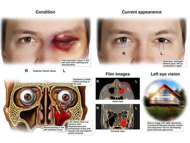 Left Eye Orbital Blowout Fracture with Subsequent Conditions