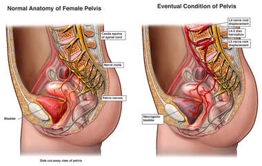 Anatomy and Eventual Condition of the Female Pelvis