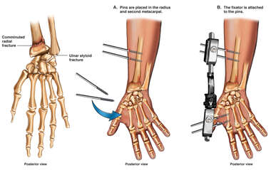 Left Wrist Fracture with Application of External Fixator