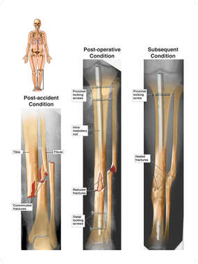 X-Ray Colorizations with Post-accident Leg Injuries and Intramedullary Rod Nail Fixation