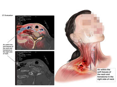 Traumatic Injuries to the Soft tissues of the Neck