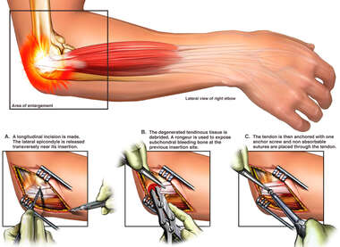 Ulnar Nerve Transpostion