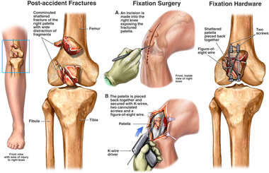 Comminuted Patellar Fractures with Initial Surgical Fixation