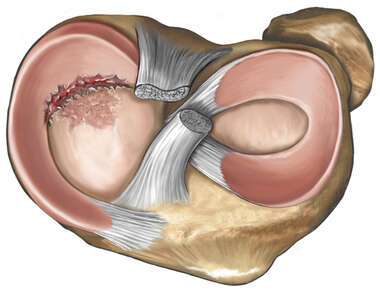 Meniscus Tear of the Knee