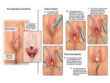 Posterior Colporrhaphy and Sphincteroplasty