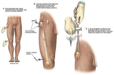 Leg Surgery - Removal of Right Femoral Intramedullary Rod