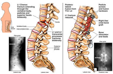 Post-accident L1 Spinal Chance Fracture with Surgical Fusion from T12 to L2