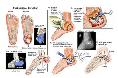 Left Foot Fracture with Surgical Fixation