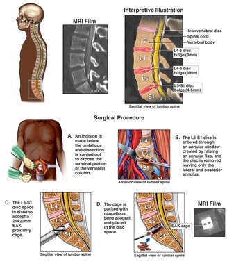 Lumbar Spine Injuries with Surgical Discectomy and Fusion