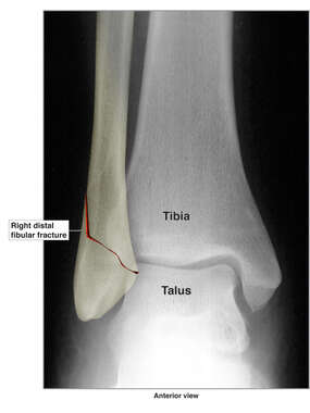 Right Ankle Fracture