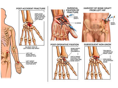 Left Wrist Fracture with Surgical Fixation and Non-union