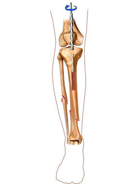 Intramedullary rod: Tibial Fixation