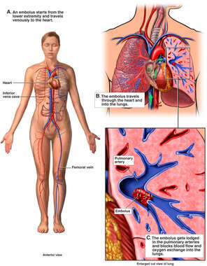 Mechanism of Pulmonary Embolism