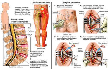Lumbar Spine Injury with Surgical Laminectomy and Discectomy