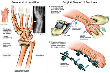 Radial Fracture with Placement of External Fixator