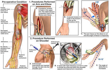 Surgical Procedures Performed on the Left Arm, Elbow and Shoulder