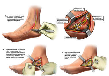 Right Foot Surgery