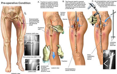 Left Leg Fracture with Surgical Fixation